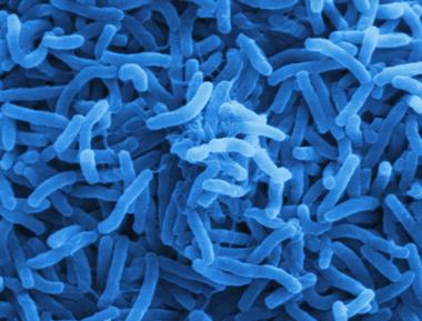 Cholera_bacteria_SEM